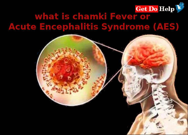 What is Acute Encephalitis Syndrome (AES) or Chamki Fever?